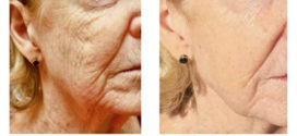 Try the Nightingale Stem Cell Lift